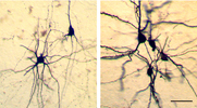 Biocytin-labeled interneurons and pyramidal neurons
