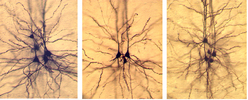 Biocytin-labeled layer 5 pyramidal neurons