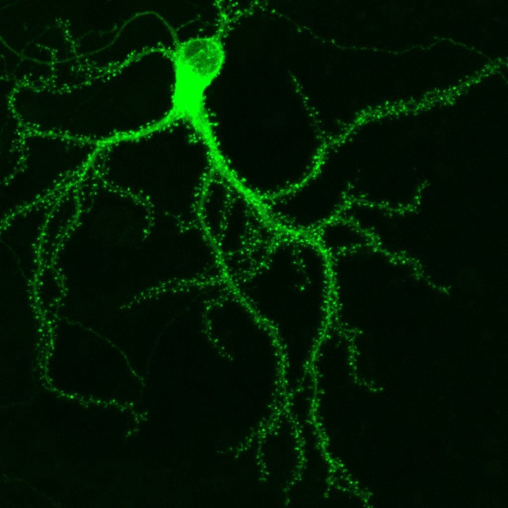 GFP-tagged protein in a hippocampal neuron