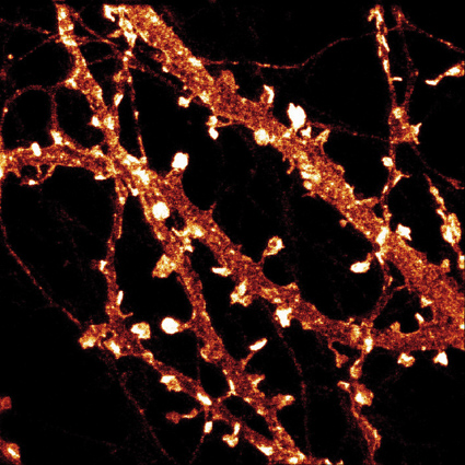 Phaloidin-Atto647N stain of actin in a cultured hippocampal neuron